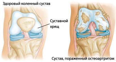 Artrit-sustavov-lechenie
