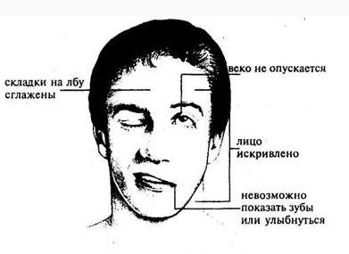 priznaki_insulta