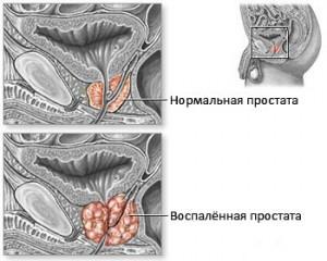 этиология и патогенез хронического простатита